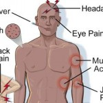 Dengue Symptoms , treatment